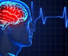 Все, что вы должны знать об инсульте: 10 фактов